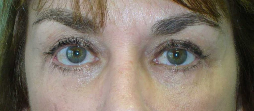 AFTER: Midface Lift Dr Gossman Louisville