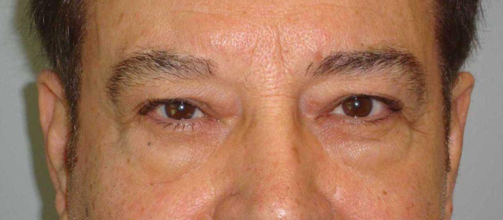BEFORE: Upper & Lower Blepharoplasty