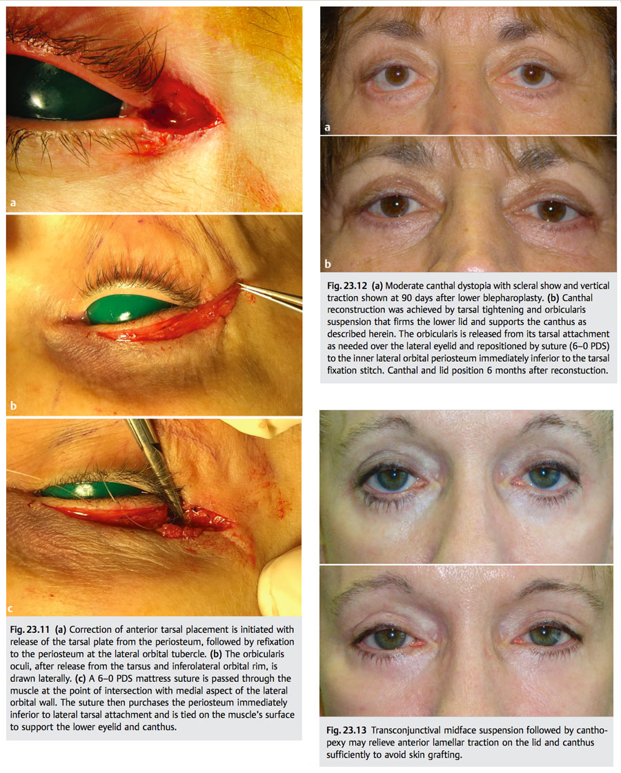 Lateral Canthal Complications In Aesthetic Eyelid Surgery